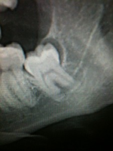 Wisdom tooth xray - Murnane Oral Surgery